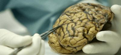 ¿Qué le ocurre al cerebro cuando escuchamos música?